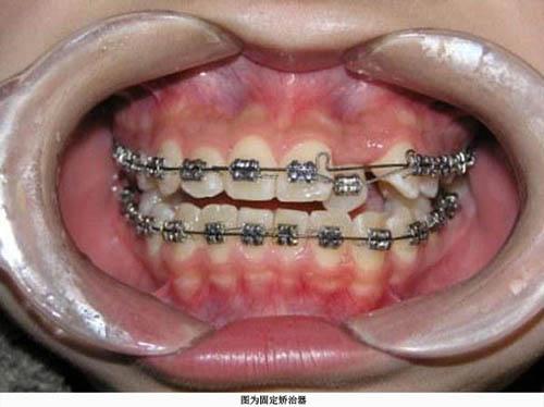 下颌孔周围结构